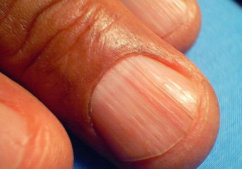 Estrías-longitudinales-de-las-uñas