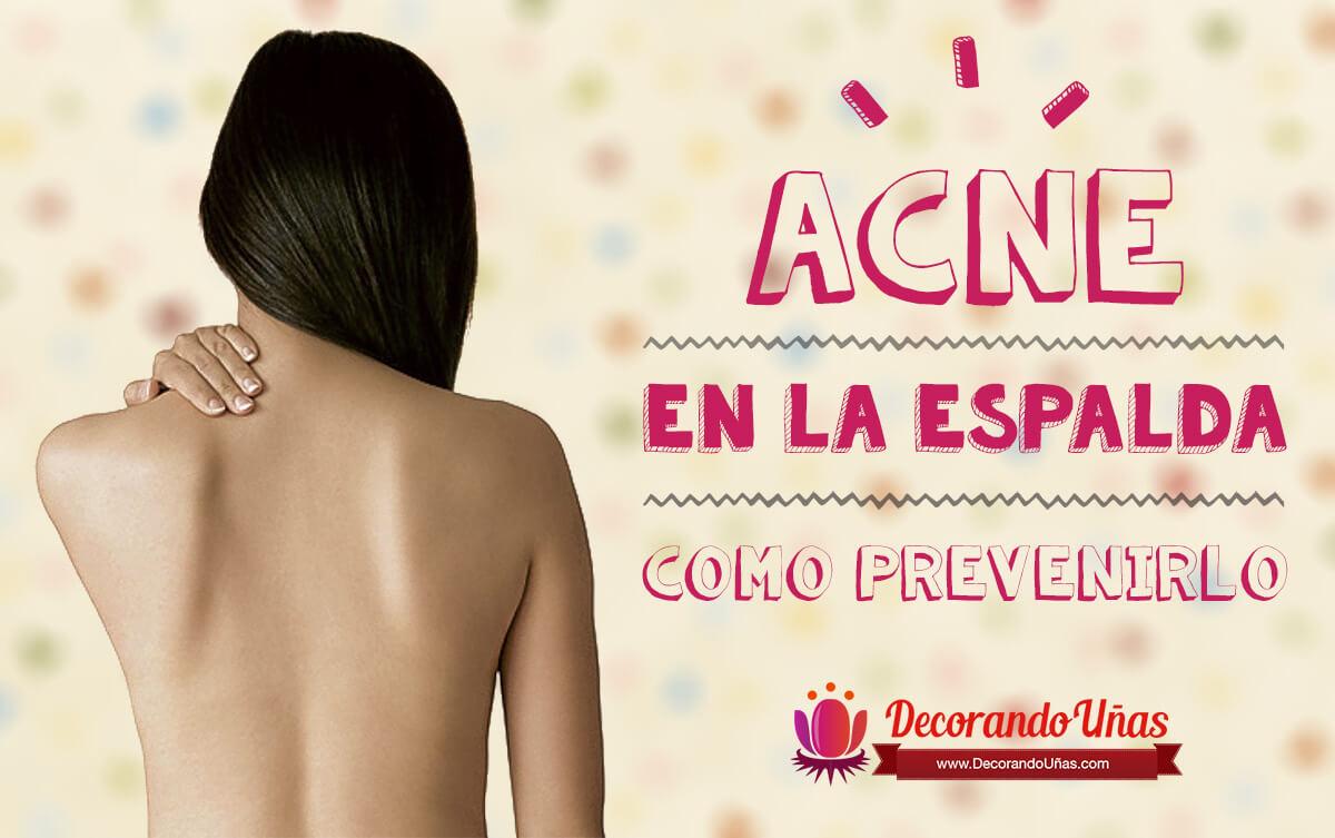prevenir-acne-espalda
