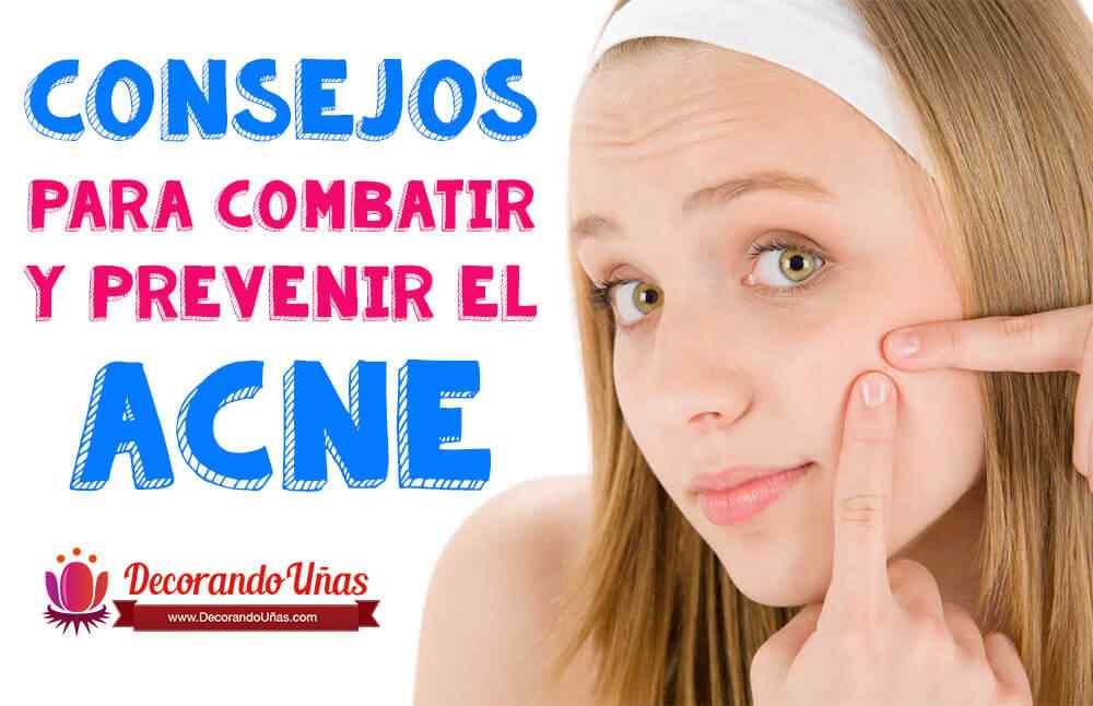 prevenir-y-quitar-acne-del-rostro