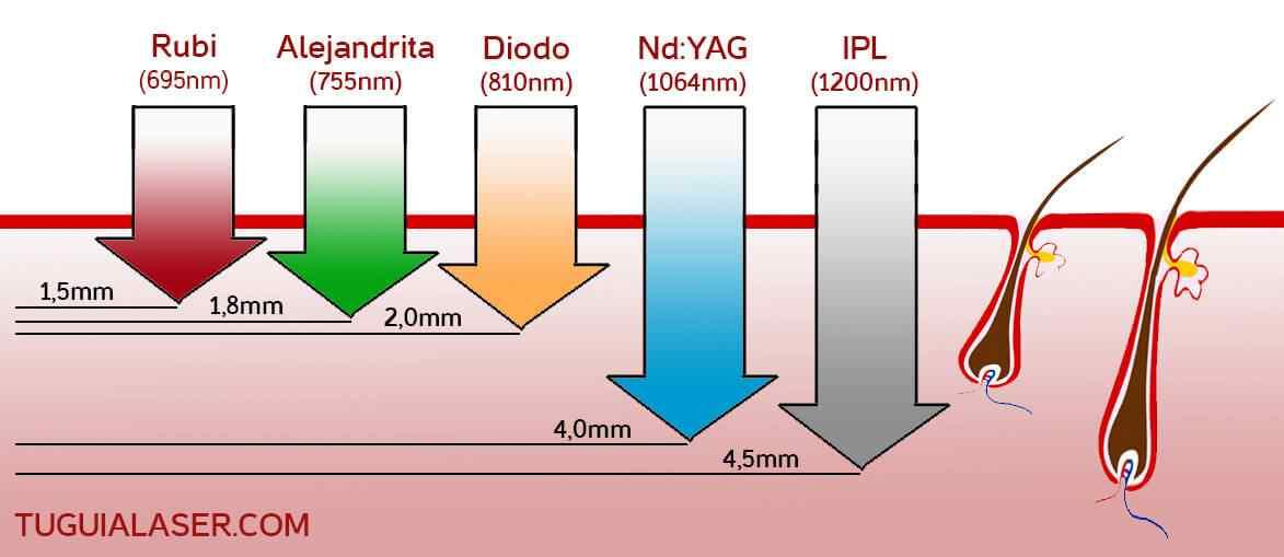 tipos-depilacion-laser