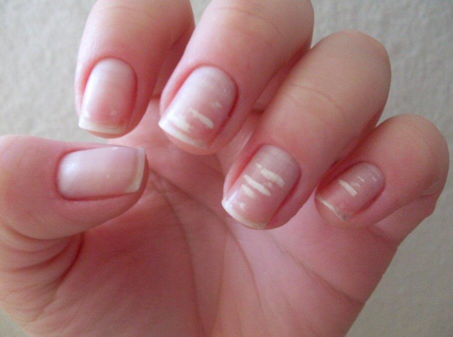 Como evitar y tratar las manchas blancas en las uñas-