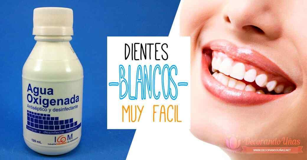¿Cómo blanquear los dientes? Algunos consejos y recomendaciones 2