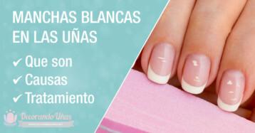 Manchas blancas en las uñas o leuconiquia