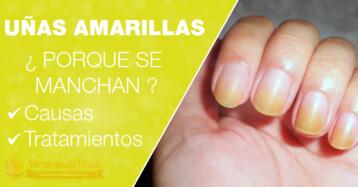 Uñas Amarillas