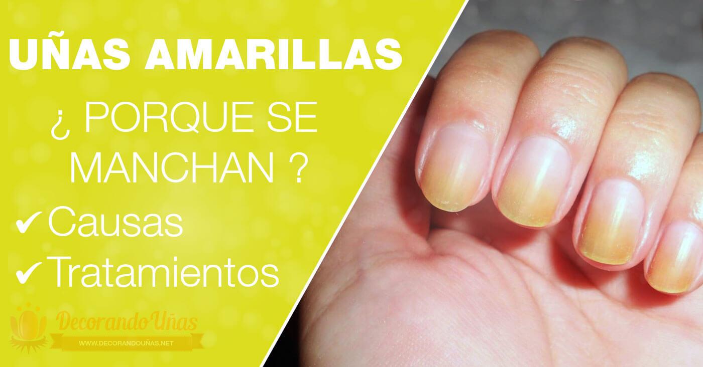 Uñas Amarillas o Amarillentas 🔥 Causas y como tratarlas - FUNCIONA!